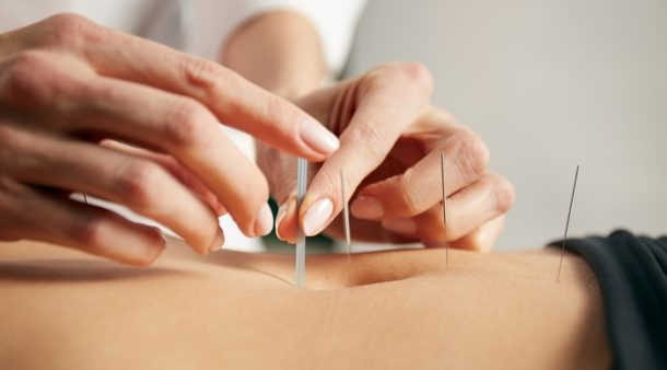 Fun Facts You May Not Know About Acupuncture